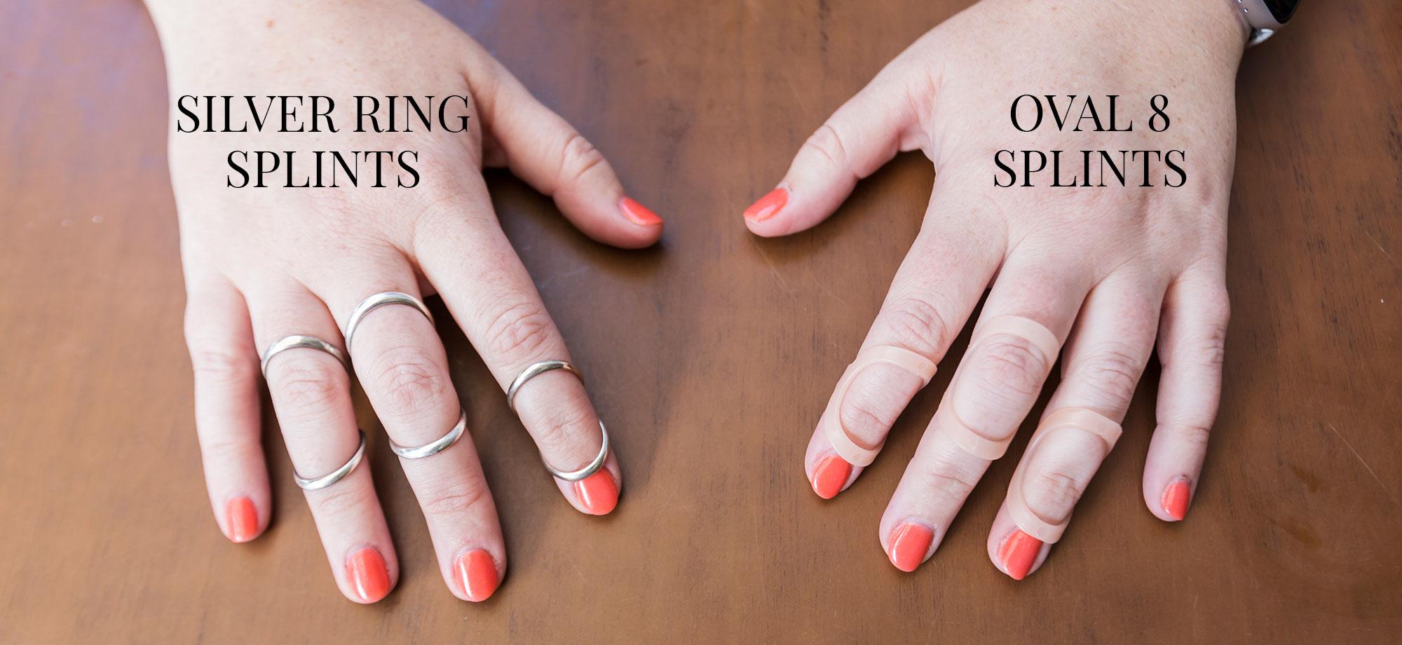 silver ring splints